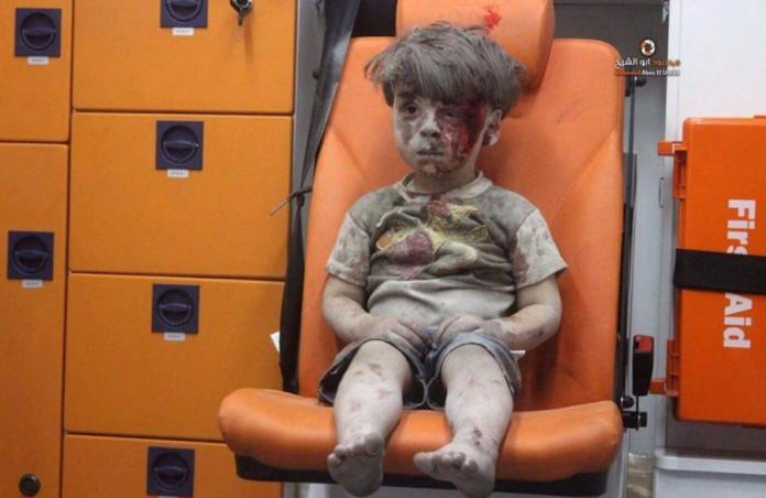 Omran, il bambino di Aleppo simbolo della tragedia in Siria