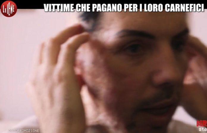 William Pezzullo, Ragazzo Sfregiato con Acido a Le Iene: Servizio 26 marzo 2017