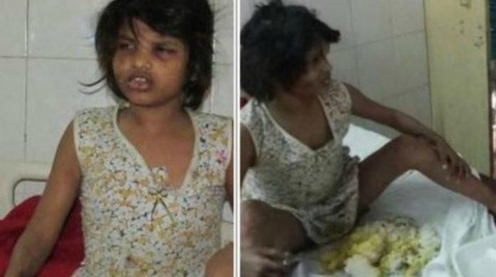 Bambina allevata dalle Scimmie: trovata in India