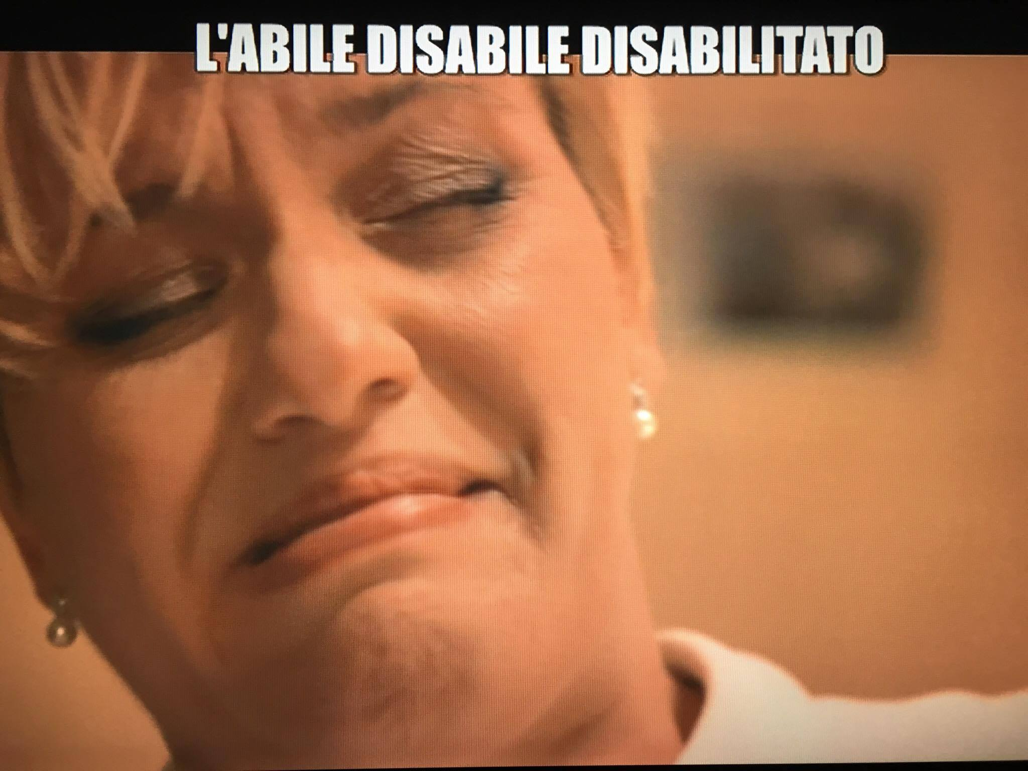 disabile-iene-avellino