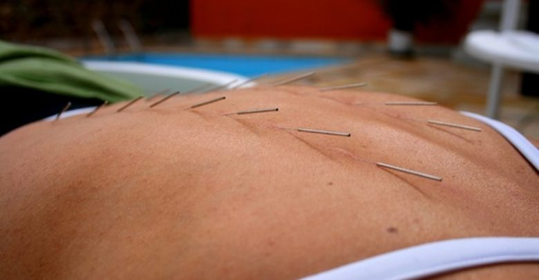 Agopuntura-napoli