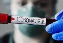 Photo of Bollettino Covid-19 di oggi 18 gennaio 2021: i numeri della pandemia